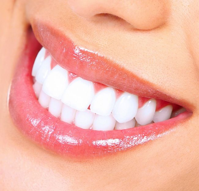 1-Quick-Ways-to-Whiten-Your-Teeth